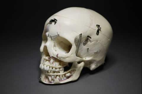 歯科医院排出品骨格標本 頭部/頭蓋骨/神経スカル髑髏ドクロ